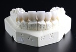 tooth-replacement-759929_960_720.jpg